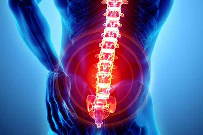 photo of spine pain