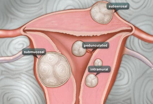Uterine Fibroid Pictures: Anatomy Diagrams, Pictures of Fibroids