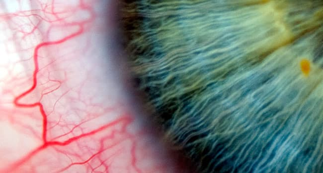veins in eye