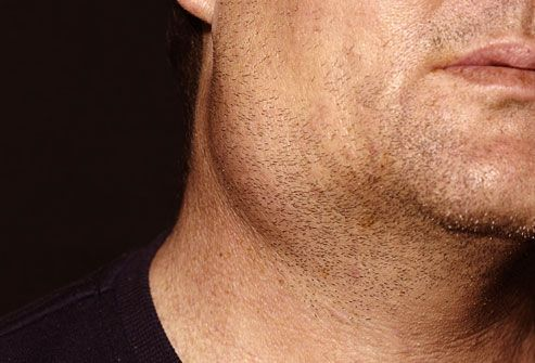 Close up of man with swollen glands