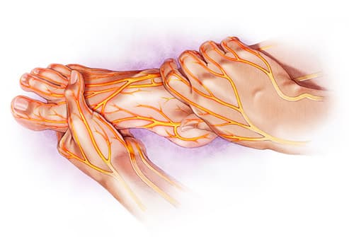 Peripheral neuropathy can result in a burning pain in the feet, making it difficult to walk