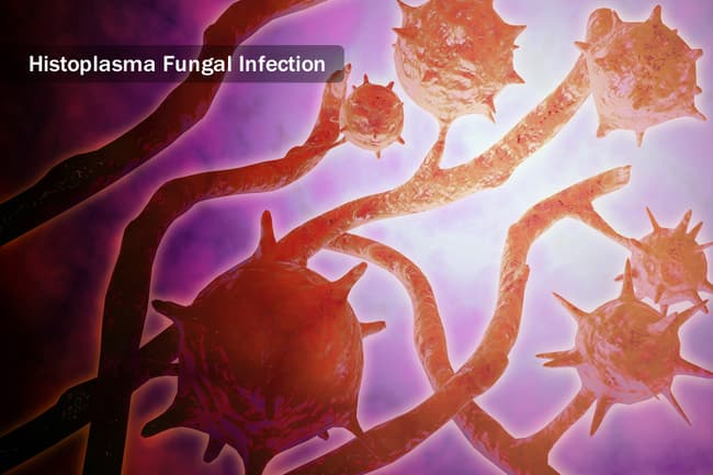 illustration of fungal infection