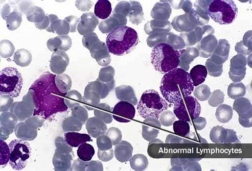 abnormal lymphocytes micrograph