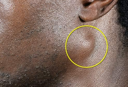 swollen lymph node under ear
