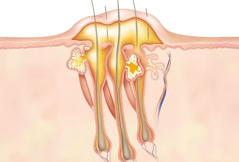 Pictures of Boils: Symptoms, Causes, Treatments, and More