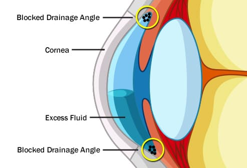 blocked drainage angle
