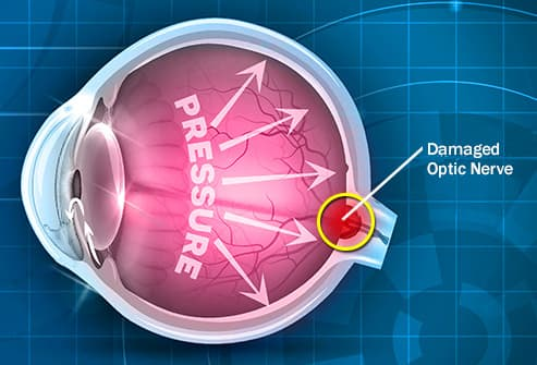 pictures of glaucoma symptoms tests and treatments