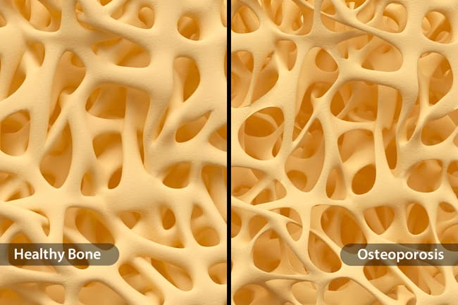 photo of healthy bone vs osteoporosis