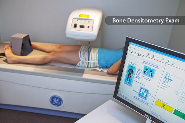 photo of bone density exam