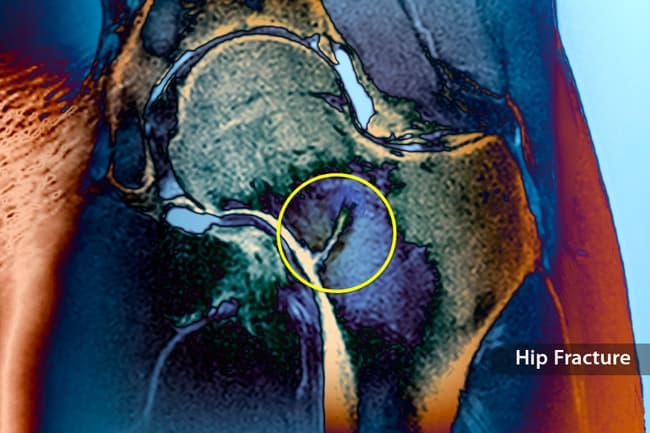 photo of hip fracture mri