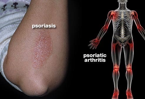psoriasis and psoriatic arthritis