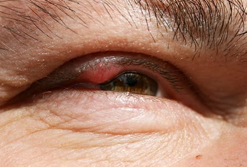 chalazion on inside upper eyelid