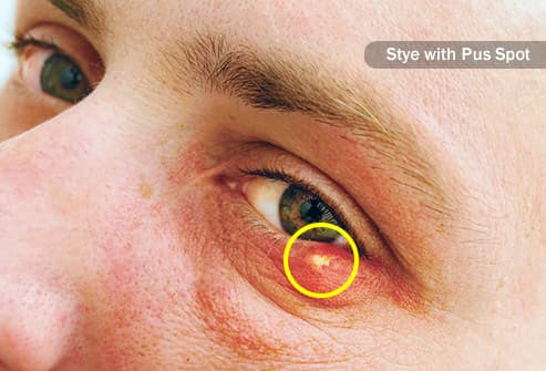 Pictures of Styes and Chalazia in Your Eye