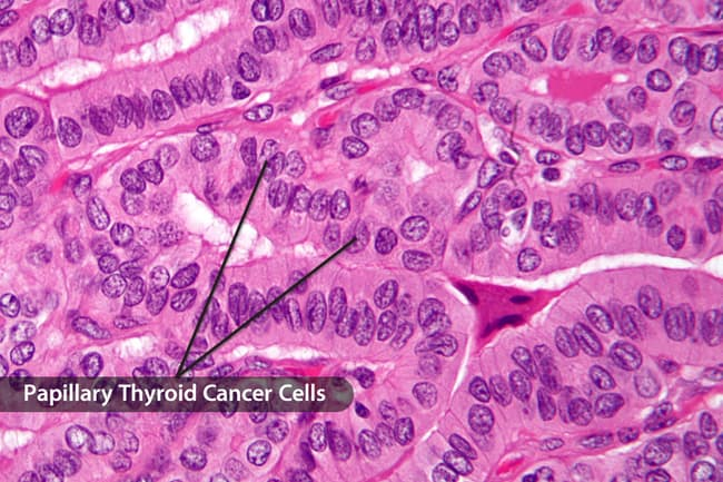 photo of thyroid cancer cells