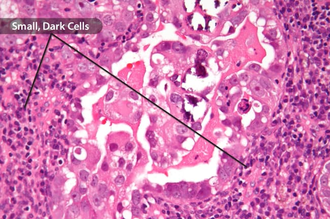 Endometrial cancer of the lymph nodes