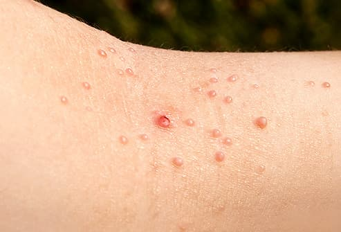 multiple warts