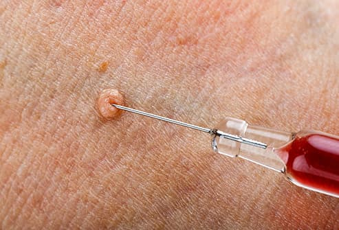 wart injection