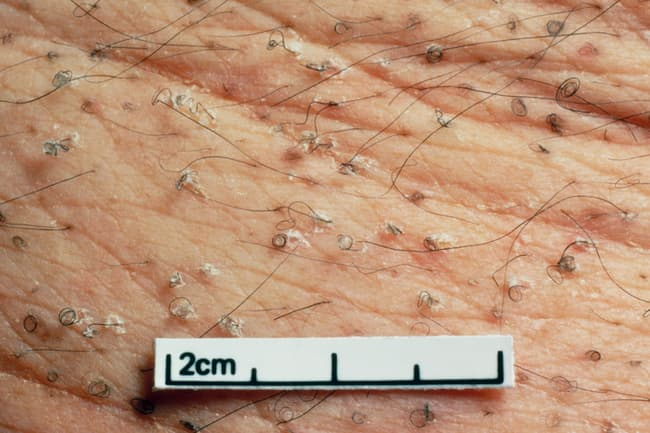 photo of corkscrew hairs