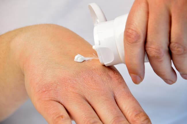 photo of lotion applied to hand