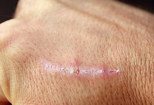 scar on hand close up