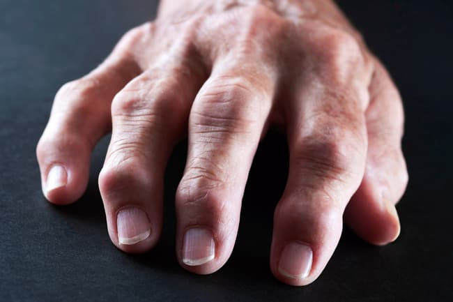 photo of rheumatoid arthritis