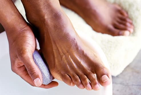 man rubbing feet with pumice stone