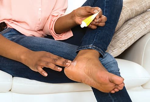 woman applying cream to feet