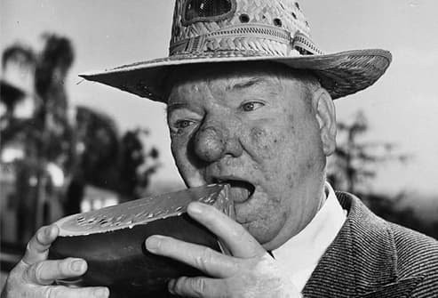 WC Fields with bulbous nose of advanced rosacea