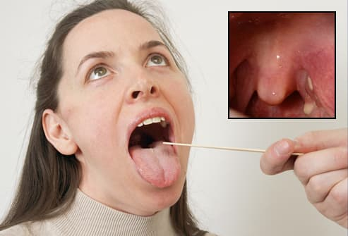 Doctor examining woman with tonsil stones