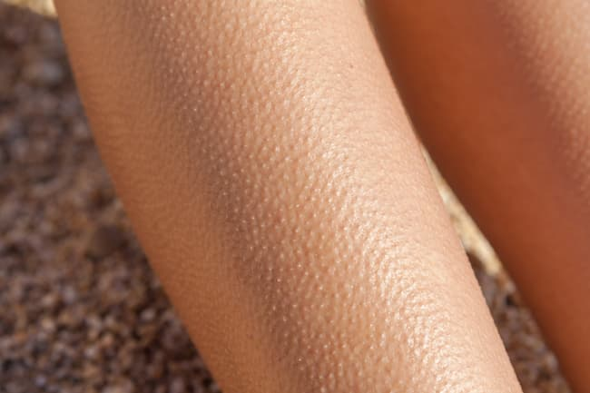 legs with goose bumps