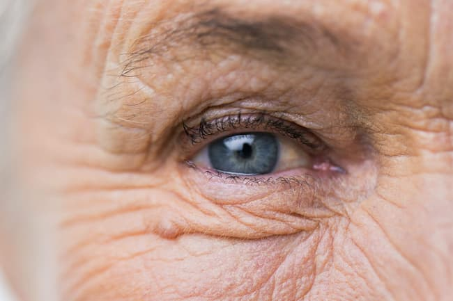 Slideshow Home Care Tips For Wet Amd