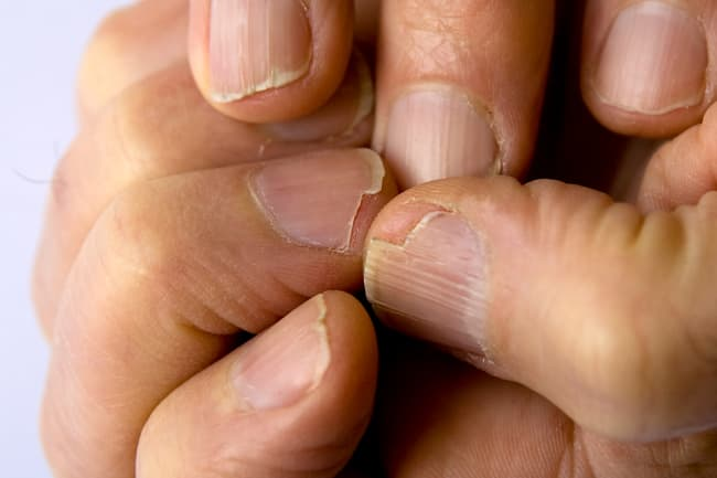 photo of brittle nails