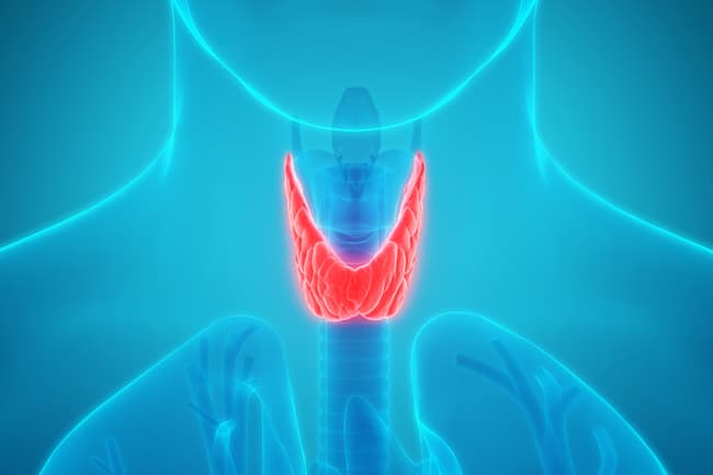 photo of thyroid