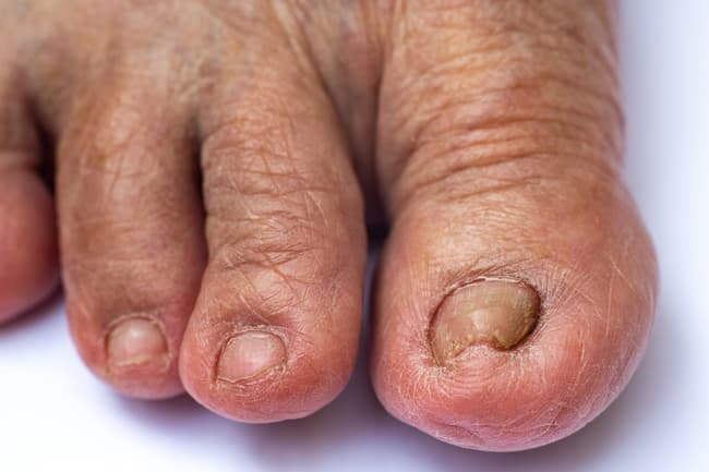 photo of toenails