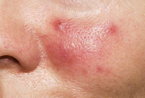 rosacea close up