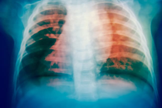 x-ray of tuberculosis