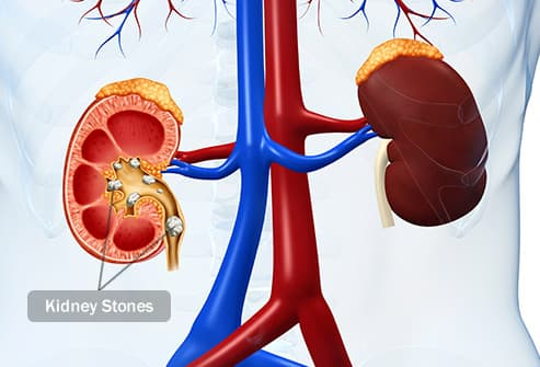 kidney stones illustration