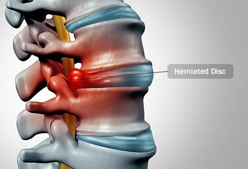 herniated disc illustration