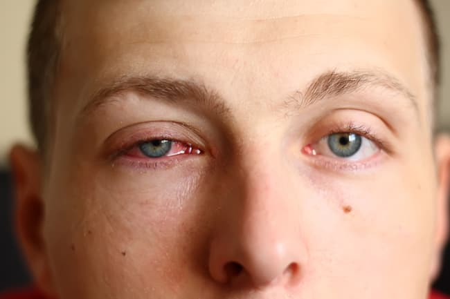 photo of person with pink eye