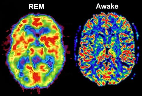 rem brain vs awake brain
