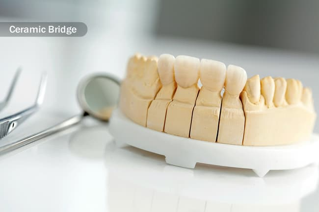 dental ceramic crown close up