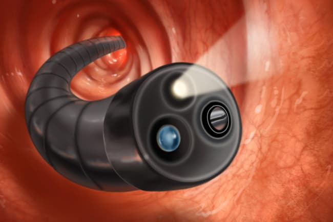 colonoscope close up