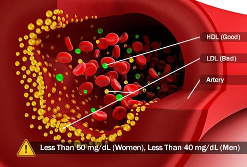 ldl and hdl cholesterol in artery