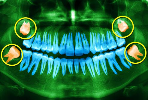 mouth xray highlighting wisdom teeth