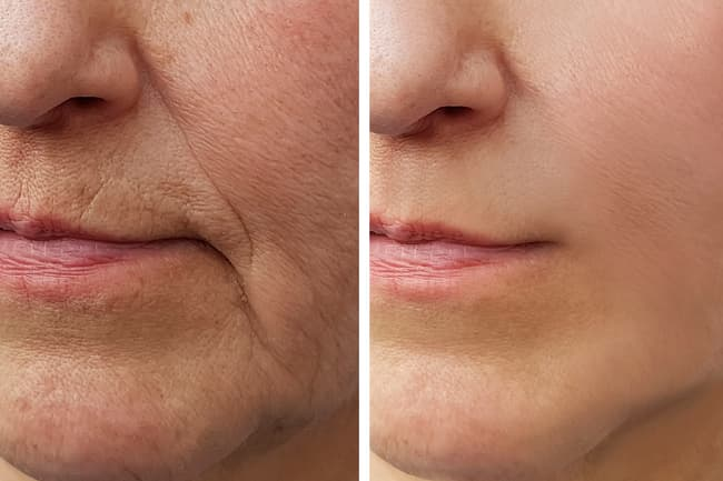photo of before-and-after collagen injections