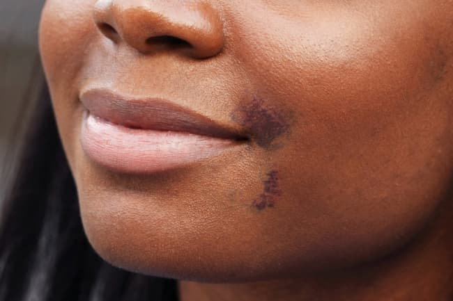 photo of facial bruising following facial filler