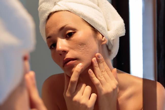 photo of woman looking at acne scars in mirror