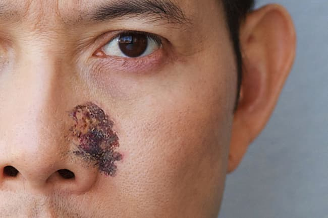 photo of necrotic tissue on face