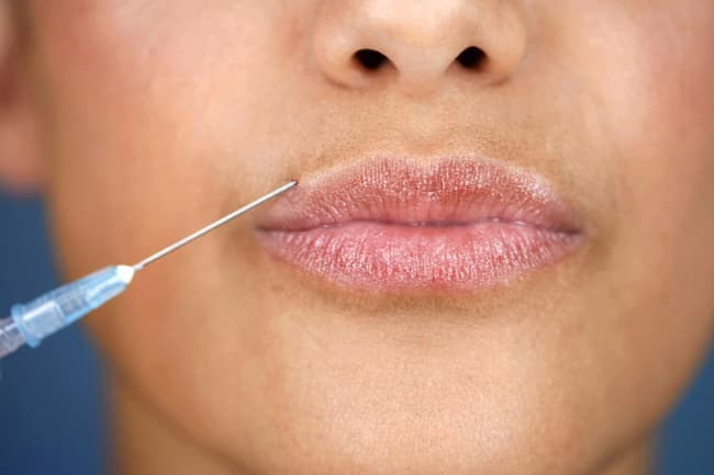 collagen injection in lip