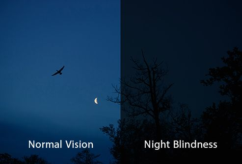 normal vision vs night blindness